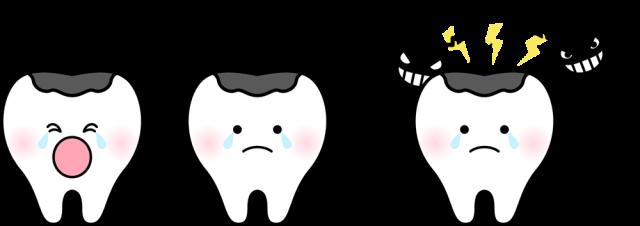 虫歯になった奥歯のイラストcsaipng 無料イラスト素材素材ラボ